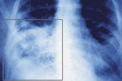 О риске развития пневмонии при приеме ингибиторов АПФ и БРА
