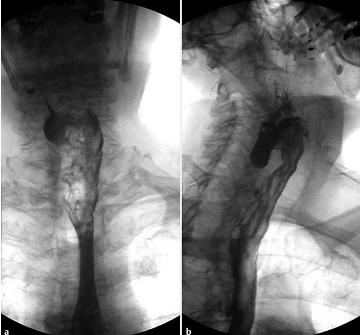 Дивертикул Ценкера (рентгеноскопия пищевода)