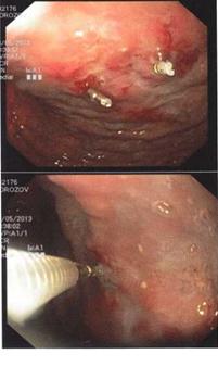 Лапароскопические технологии в билиарной хирургии