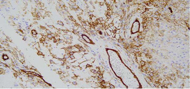 Характерным иммуногистохимическим признаком плеоморфной липомы является экспрессия CD34. Позитивный внутренний контроль – кровеносные сосуды