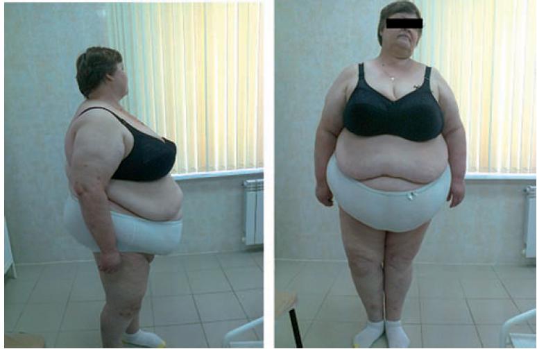 Рис. 1. Больная N. 51год. Исходный вес 165 кг, рост 1,68 м; ИМТ 58,5 кг/м2