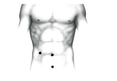 Рис. 2. Точки введения троакаров при лапароскопической аппендэктомии