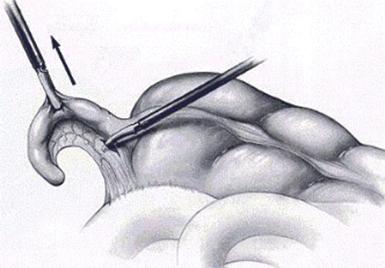 Рис. 3. Проведение лигатуры через отверстие в брыжейке червеобразного отростка
