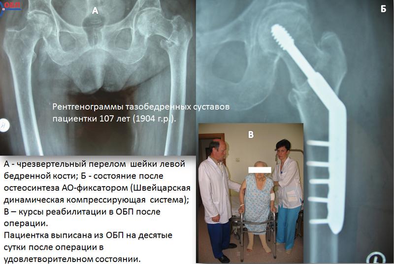 Рентгенограмма тзобедренных суставов пациентки 107 лет
