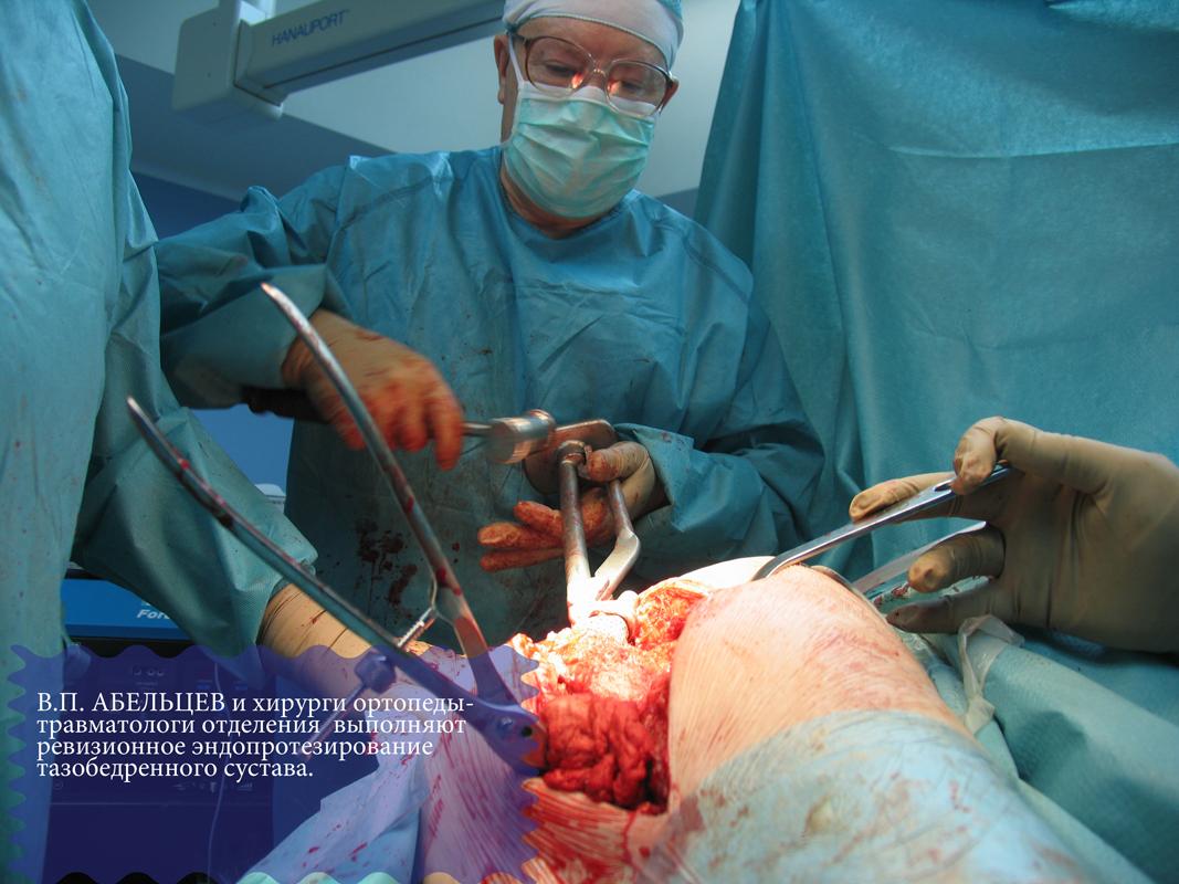 операция тазобедренных суставов ребенок