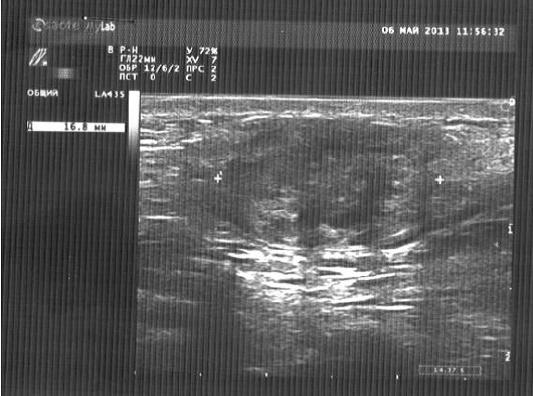 Эндометриоз брюшной стенки и подкожной клетчатки. Ультразвуковая картина