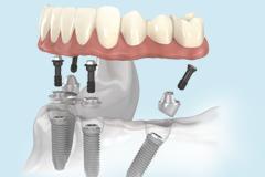 Протезирование зубов на четырех имплантах