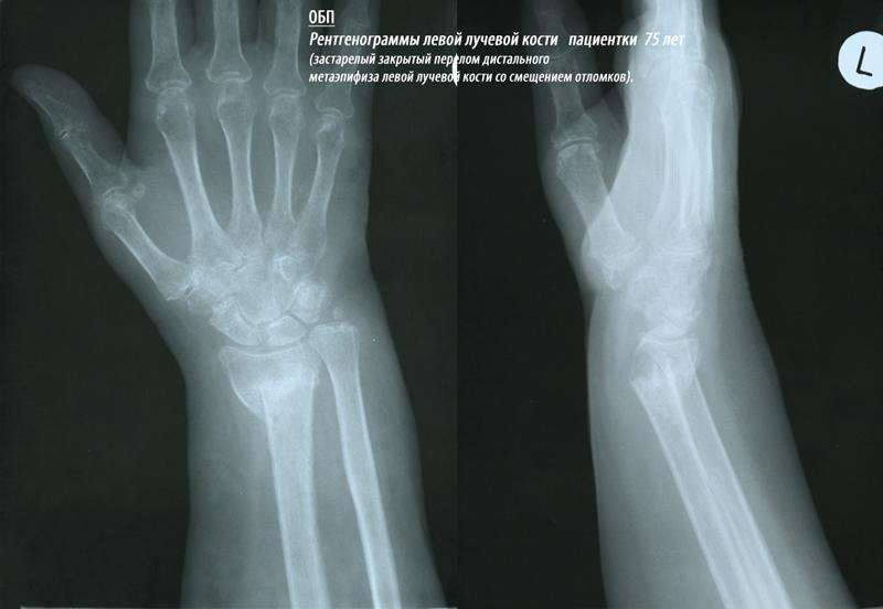 перелом нижнего конца лучевой кости фото понятие