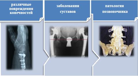 Поликлиника по замене суставов