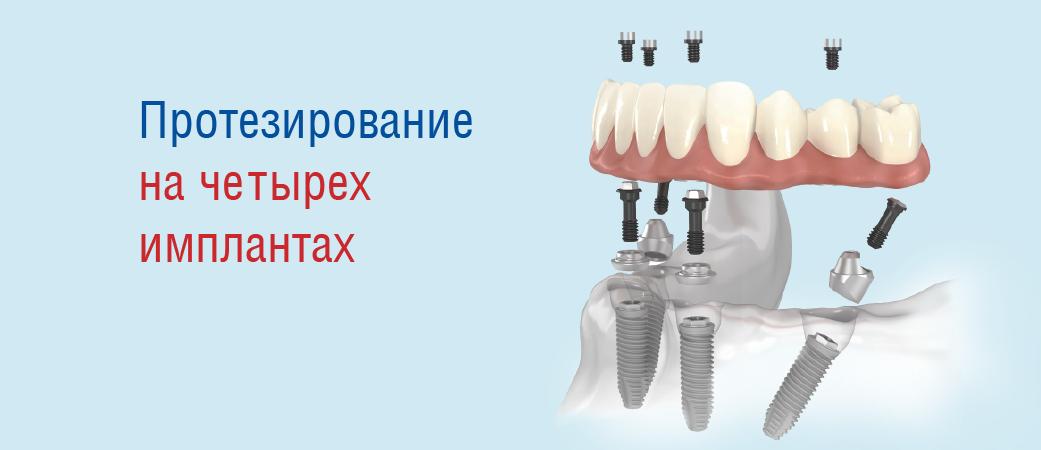 Протезирование зубов на черырех  имплантах